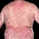 Read more about: Weight loss reduces psoriasis symptoms