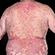 Læs mere om: Vægttab mindsker gener ved psoriasis